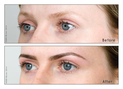 HDBrows Before-After